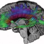 Routine Play Leads to Long Term Brain Injury