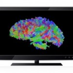"New ""High Def"" Brain Imaging Helps Concussion Diagnosis and Recovery"