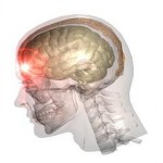 Orthopaedic Doctors to Help with Mild TBI