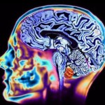 "First Concussion Alters ""Microstructure"" of Brain in Young Athletes"