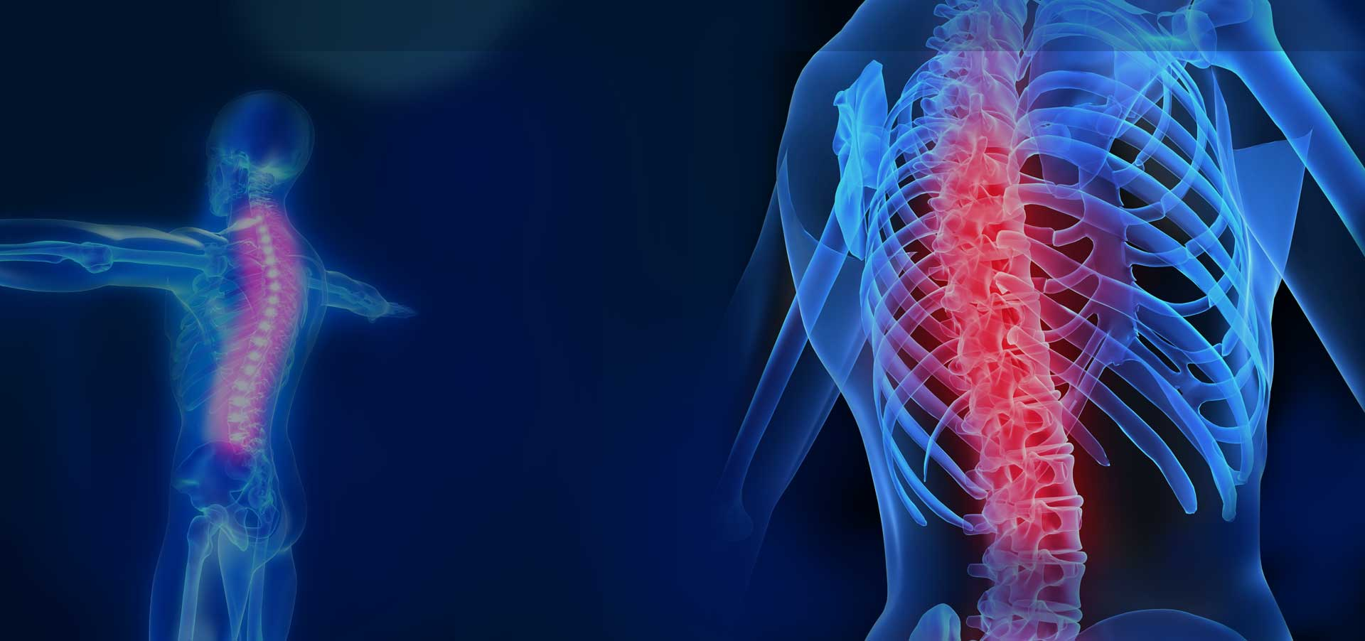Spinal Cord Injury banner image