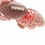 Brain Damage in High School Football
