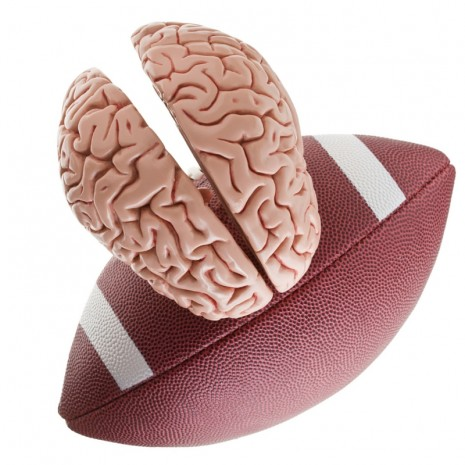 NFL Football Brain Injury Conidi